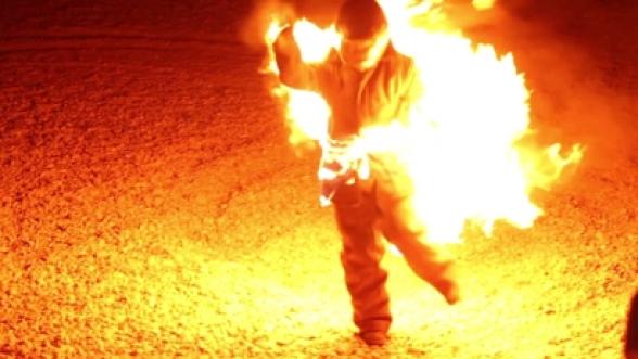 Մարմնի 90 տոկոս այրվածքներով Այրվածքաբանության կենտրոն է տեղափոխվել մի տղամարդ