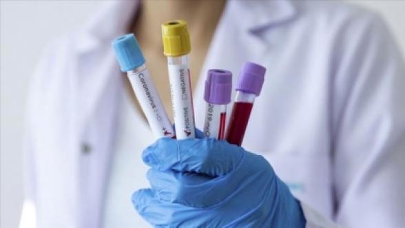 Ադրբեջանում կորոնավիրուսով վարակվածների թիվը հասել է 443-ի (РИА Новости)