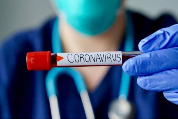 Այս պահին վերակենդանացման բաժանմունքներում թոքաբորբով կորոնավիրուսային հիվանդությամբ հաստատված 25 պացիենտ է բուժում ստանում