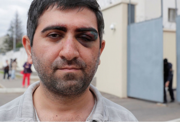 Մինսկում ուժայինները ծեծի են ենթարկել ՀՀ քաղաքացու (լուսանկար)
