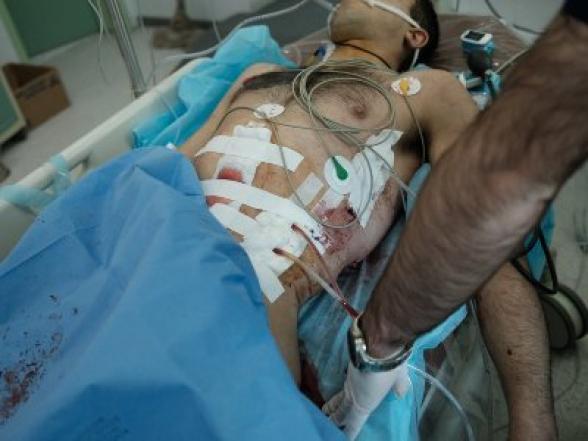 Работающие под обстрелом врачи: Анна Нагдалян опубликовала фотографии из больниц Арцаха