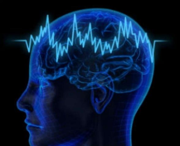 Գլխուղեղի նիկոլիզմ
