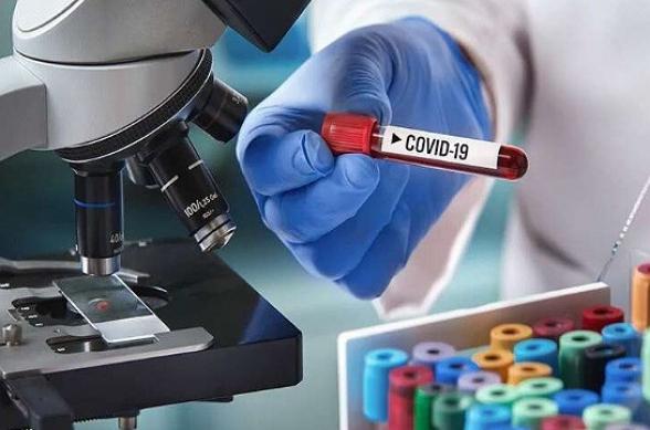 За сутки в Армении выявлено 250 новых случаев коронавируса, скончались еще 7 человек