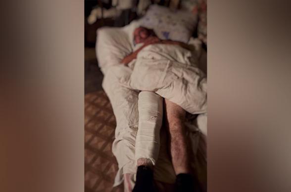 Մաճկալաշեն գյուղի գերեվարված բնակիչը Ադրբեջանի ԶՈՒ կողմից ծեծի ու անմարդկային վերաբերմունքի է ենթարկվել, վնասվել է ոտքը․ Արցախի ՄԻՊ