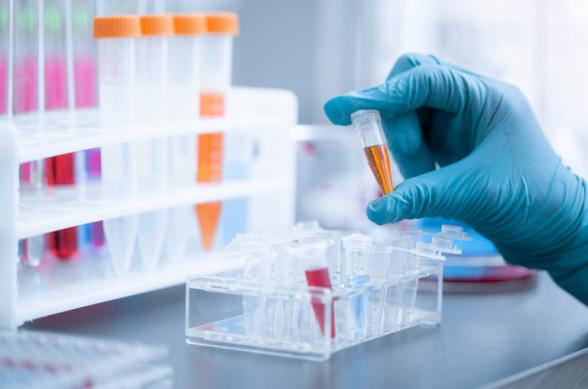 За сутки в Армении выявлено 280 новых случаев коронавируса