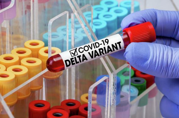 За сутки в Армении выявлено 243 новых случая коронавируса, скончались еще 6 человек
