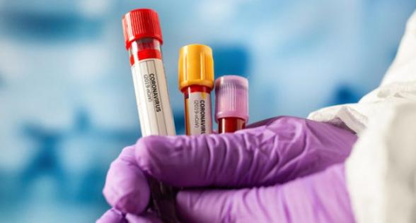 За сутки в Армении выявлено 462 новых случая коронавируса, скончались еще 14 человек